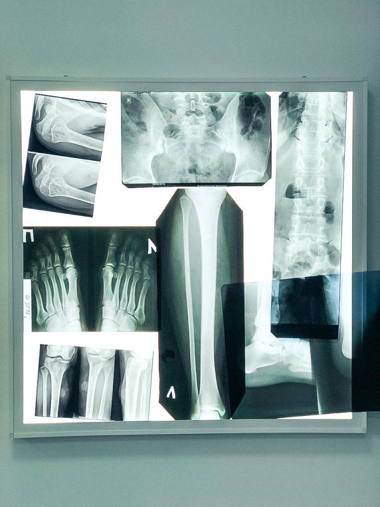 Травматолог в Запорожье | МедЦентр «36.6» | Запорожье