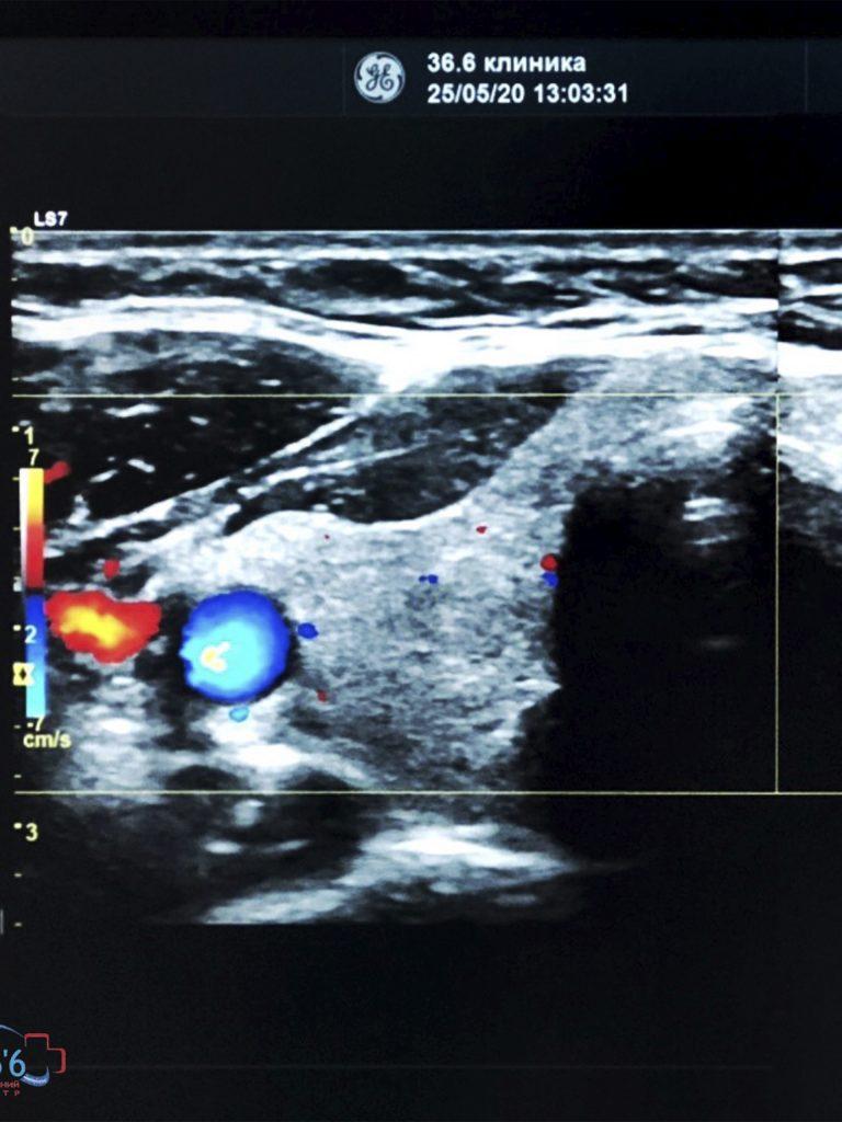 Эндокринолог Запорожье | МедЦентр «36.6» | Запорожье