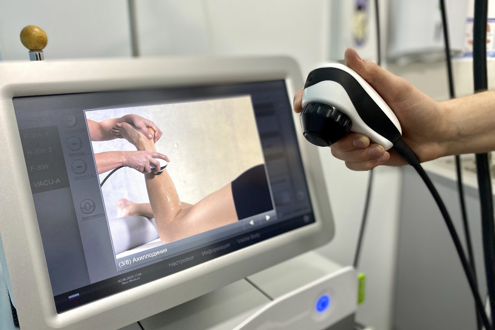Ударно волновая терапия. Как помогает УВТ? | МедЦентр «36.6» | Запорожье