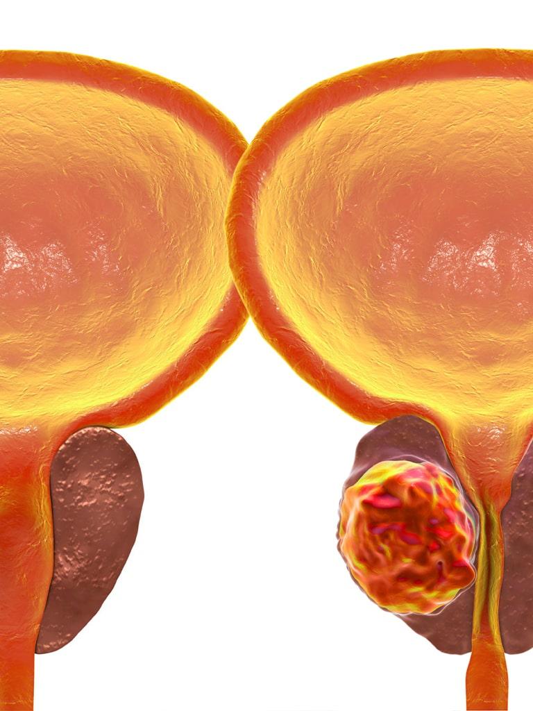 Биопсия предстательной железы   МедЦентр «36.6»   Запорожье